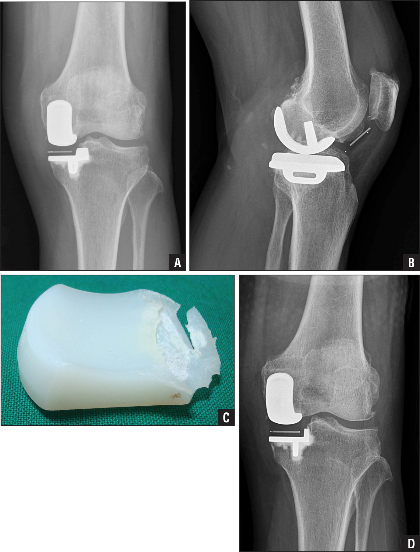Postoperative anteroposterior radiograph showing good alignment of the femoral and tibial components (A). Lateral radiograph showing anterior dislocation of the meniscal bearing (B). Photograph of the retrieved meniscal bearing showing severe erosions on the posterior lip, suggesting that wear of the posterior lip during deep flexion was the cause of this dislocation (C). Anteroposterior radiograph after exchange of the meniscal bearing with a thicker bearing (D).
