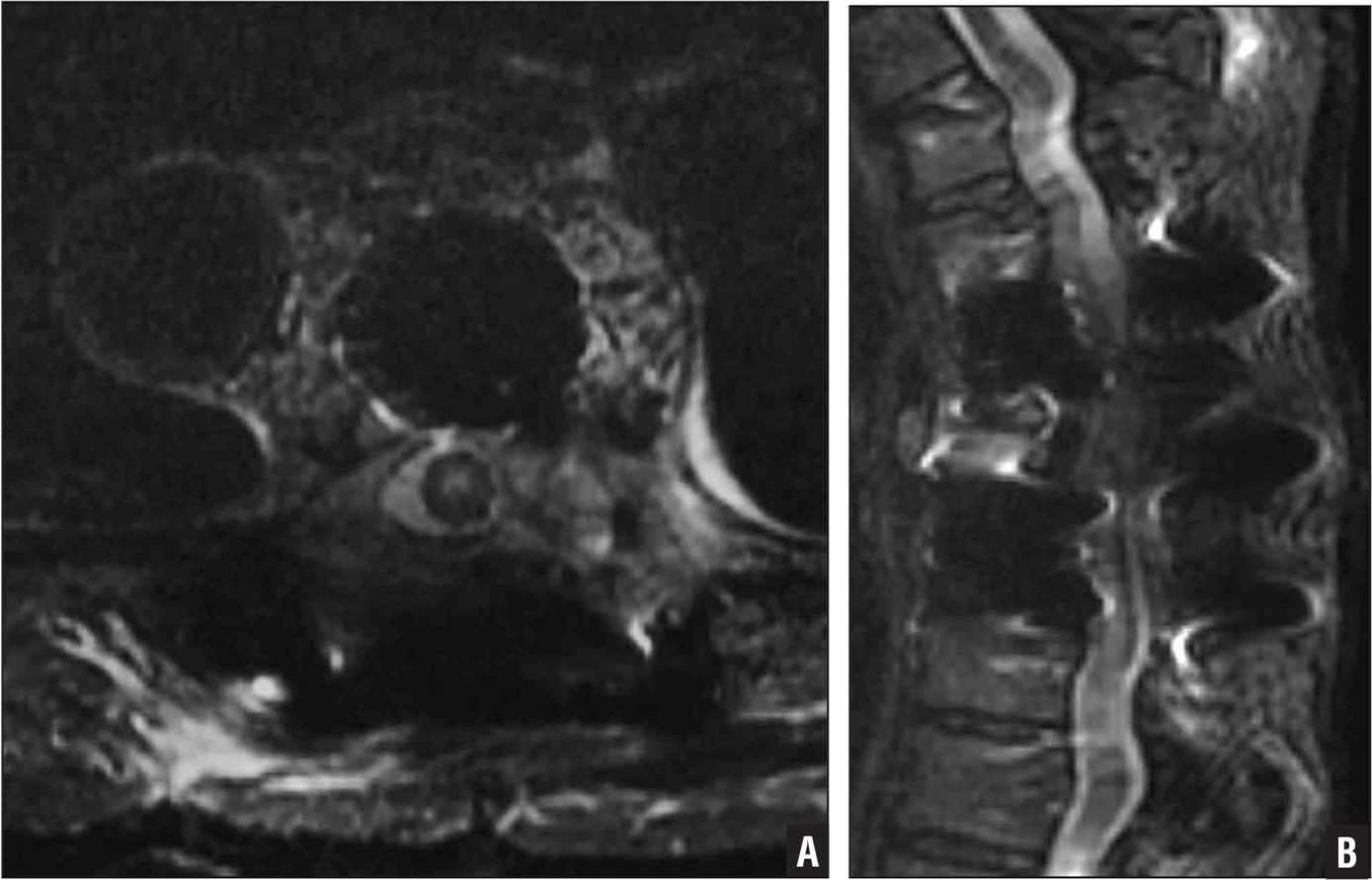 Axial (A) and sagittal (B) T2-weighted magnetic resonance images after the third surgery showing adequate decompression and a high-signal lesion in the spinal cord.