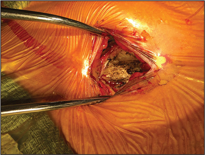 Iliac crest exposed with the initial pilot hole in the proximal (right) aspect of the wound.
