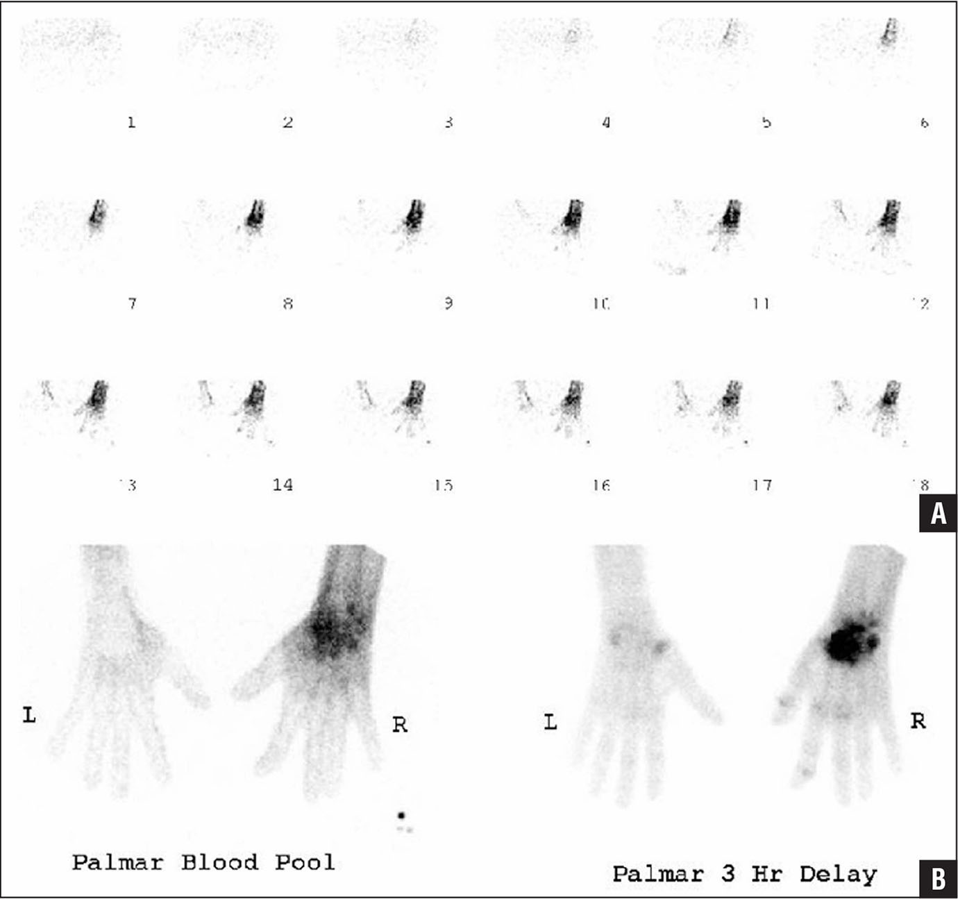 Complex regional pain syndrome. A patient presented with pain, hyperesthesia, and swelling in the right hand and wrist several months after injury. Blood flow images from technetium-labeled diphosphonate bone scan showing increased radiotracer perfusion to the right hand (A). Blood pool and delayed images revealing increased radionuclide activity, particularly involving the periarticular regions of the right wrist (B). Normal results were seen on radiographs.