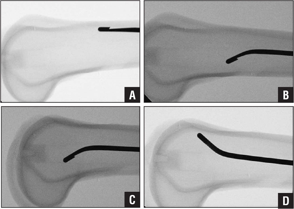 Sawbone model showing the sequence of maneuvers. The wire abutting the anterior cortex (A). The first wire is removed and bent. It is reinserted with the tip pointing posteriorly (B). The bent-tip wire at the level of the patellofemoral joint (C). The wire rotated 180° and pushing off the anterior cortex (D).
