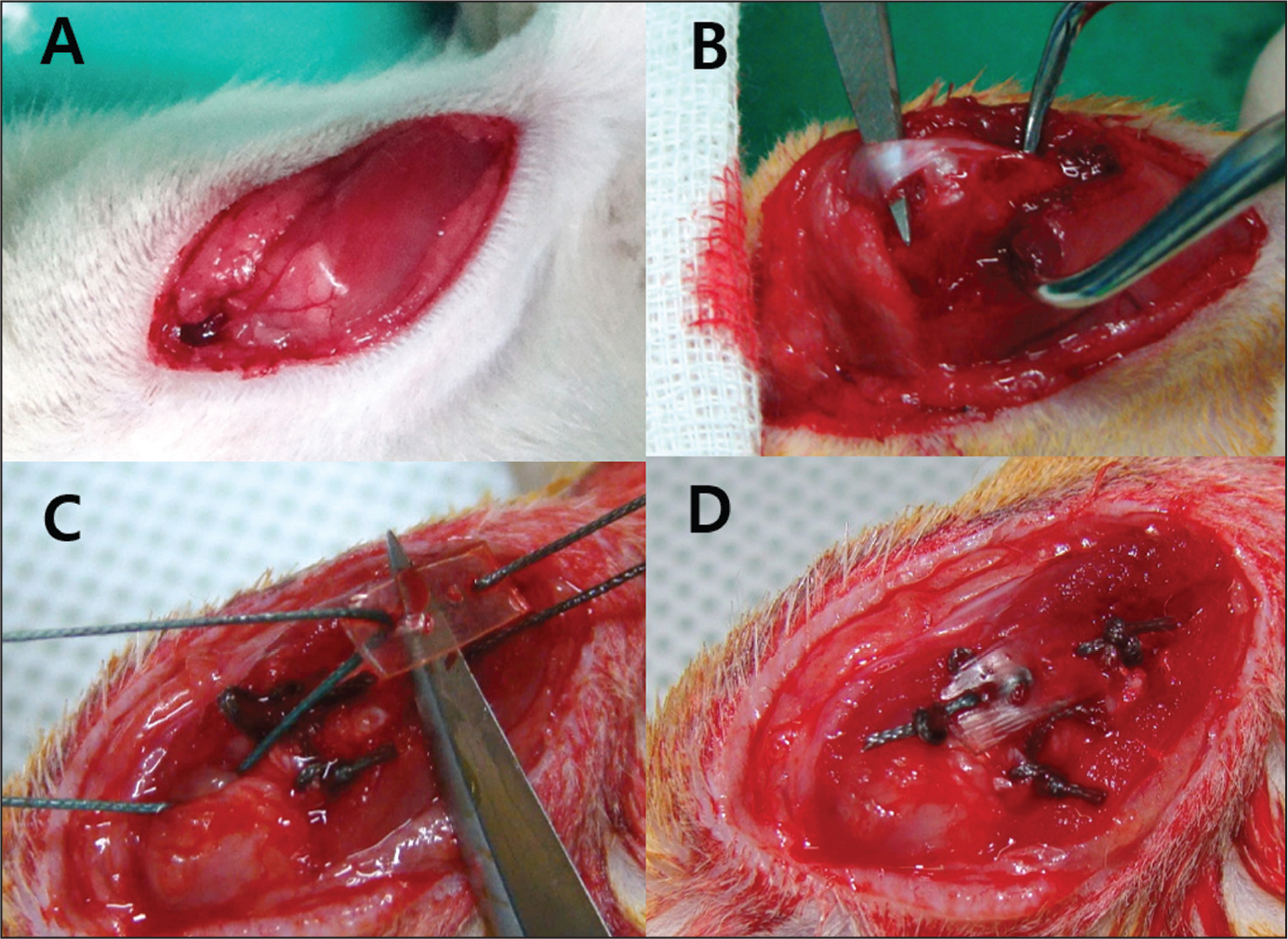 After rotator cuff repair, the control group was subjected exclusively to repair (A, B). In the experimental group, an alginate sheet was placed on the detached tendon (C) and repaired simultaneously (D).