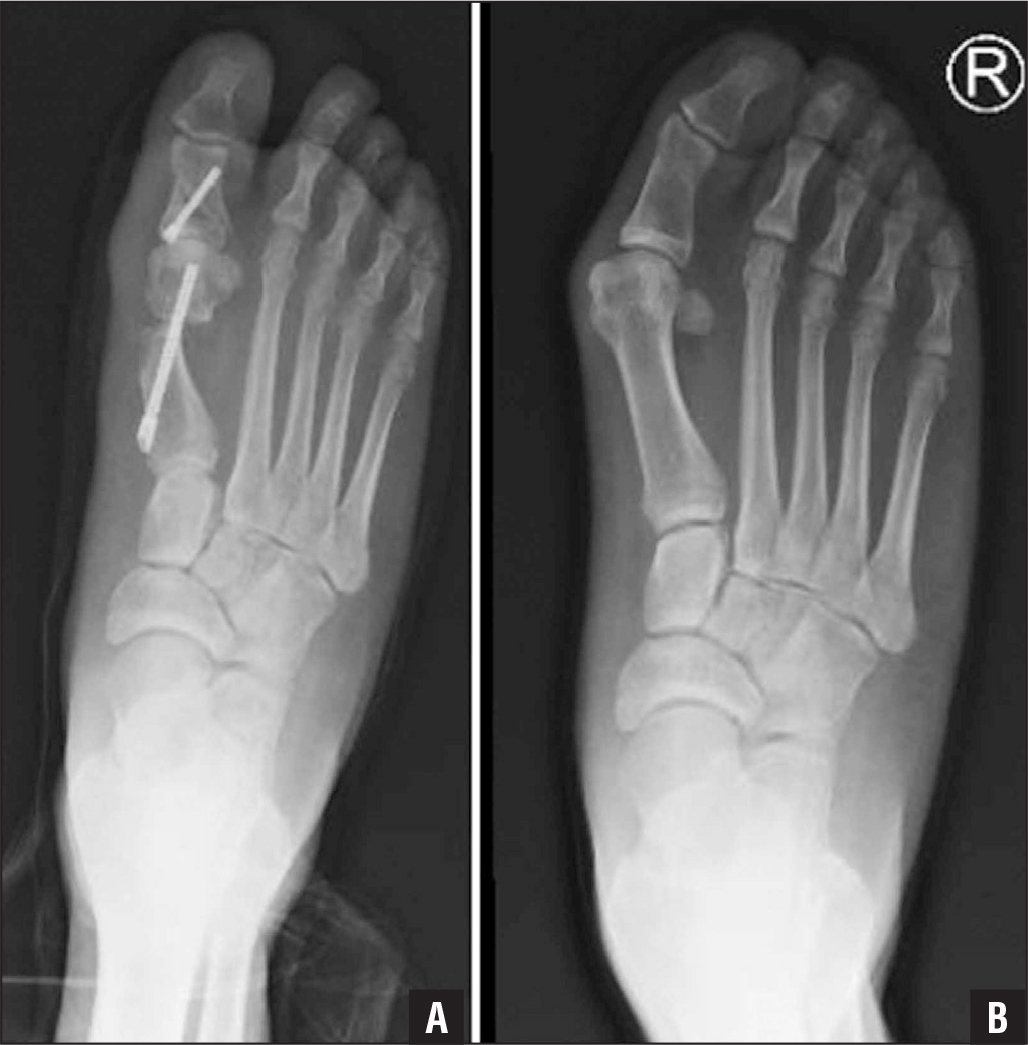 Preoperative weight-bearing anteroposterior radiograph of the foot of a 43-year-old man reporting second and third metatarsalgia and bunion pain (A). Postoperative weight-bearing anteroposterior radiograph showing the realigned first ray. The correction of the bunion alone allowed for complete resolution of the transfer metatarsalgia (B).