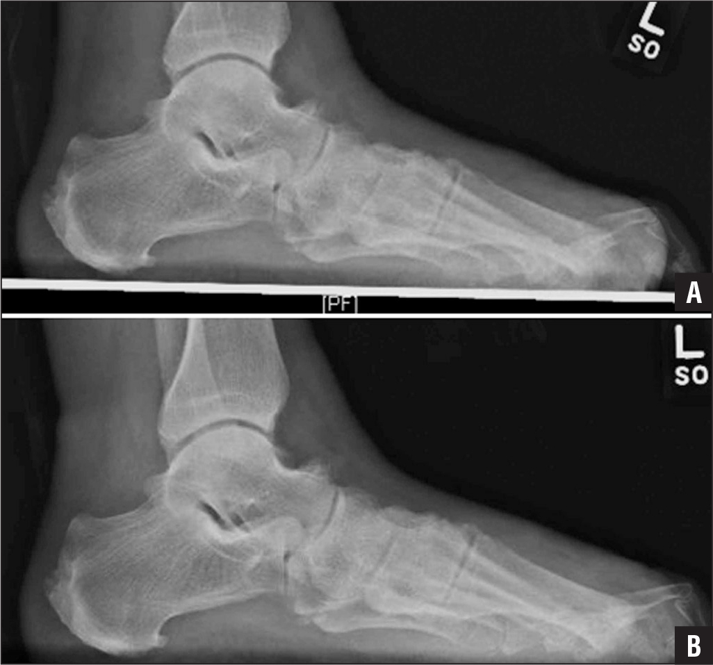 Preoperative weight-bearing lateral radiograph of a 64-year-old man with neuropathic pain who had amputation of the hallux secondary to osteomyelitis. The patient reported severe lesser metatarsalgia. He underwent percutaneous second, third, fourth, and fifth distal metatarsal osteotomies (A). Postoperative weight-bearing lateral radiograph showing the elevation of the lesser metatarsals from the ground compared with preoperatively (B)