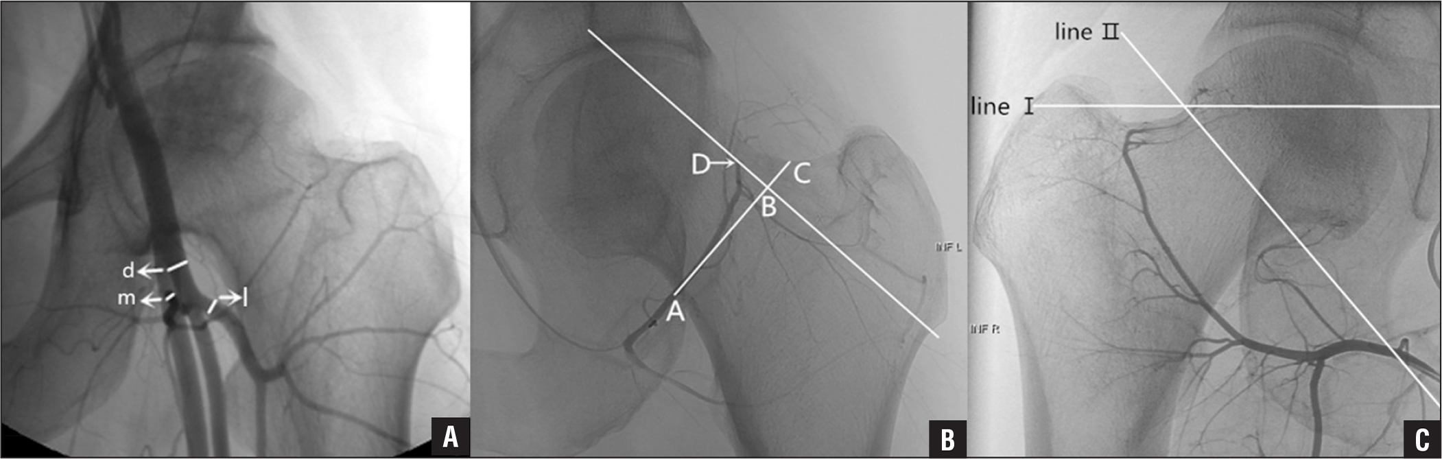 d, Diameter of the deep femoral artery (DFA); m, diameter of the medial circumflex femoral artery (MCFA); l, diameter of the lateral circumflex femoral artery (LCFA); MCFA/DFA: m/d; LCFA/DFA: l/d (A). A: AB/AC. Point A, the projective intersection of the MCFA and the femoral neck. Point D, the projective end point of the MCFA. Point C, the crossover point of the AB extension line and the femoral neck. AB is perpendicular to the long axis of the femoral neck. BD is parallel to the long axis (B). Line I: a horizontal line at the upper junction of the femoral head and neck. Line II: the line that connects the upper and lower junctions of the femoral head and neck (C).