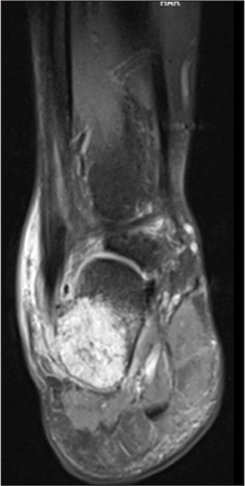 T2 magnetic resonance image showing a high signal lesion of the right calcaneus.