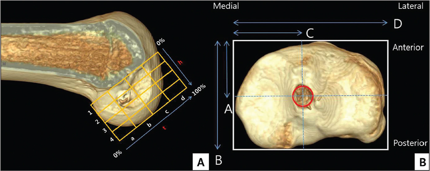 On the lateral femoral side of a 3-dimensional computed tomography scan, the location of the femoral tunnel aperture centers was established within a 4×4 grid, which was oriented along the most anterior edge of the notch roof (h=line perpendicular to the Blumensaat line; t=line parallel to the Blumensaat line) (A). The central points of the tibial tunnel from the anterior edge and the medial edge of the tibial plateau were calculated as A/B and C/D, respectively (A=the distance from the center of the tunnel to the anterior tangential line; B=medial tangential line; C=the distance from the center of the tunnel to the medial tangential line; D=anterior tangential line) (B).