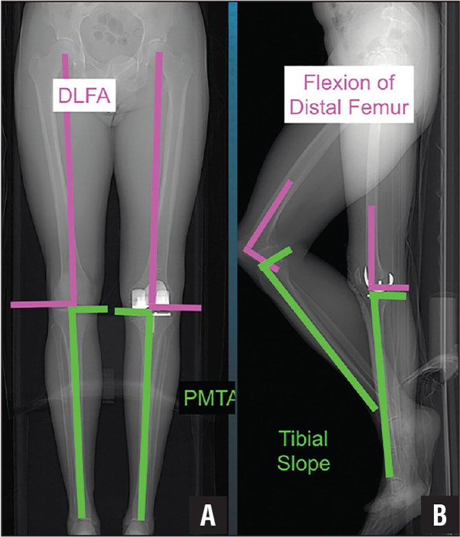 Composite showing that calipered kinematic alignment restored the distal lateral femoral angle (DLFA) and proximal medial tibial angle (PMTA) of the total knee arthroplasty to those of the native knee in the sagittal plane (A) and the flexion–extension orientation of the distal femoral joint line and the proximal tibial joint line of the total knee arthroplasty to those of the native knee in the coronal plane (B).