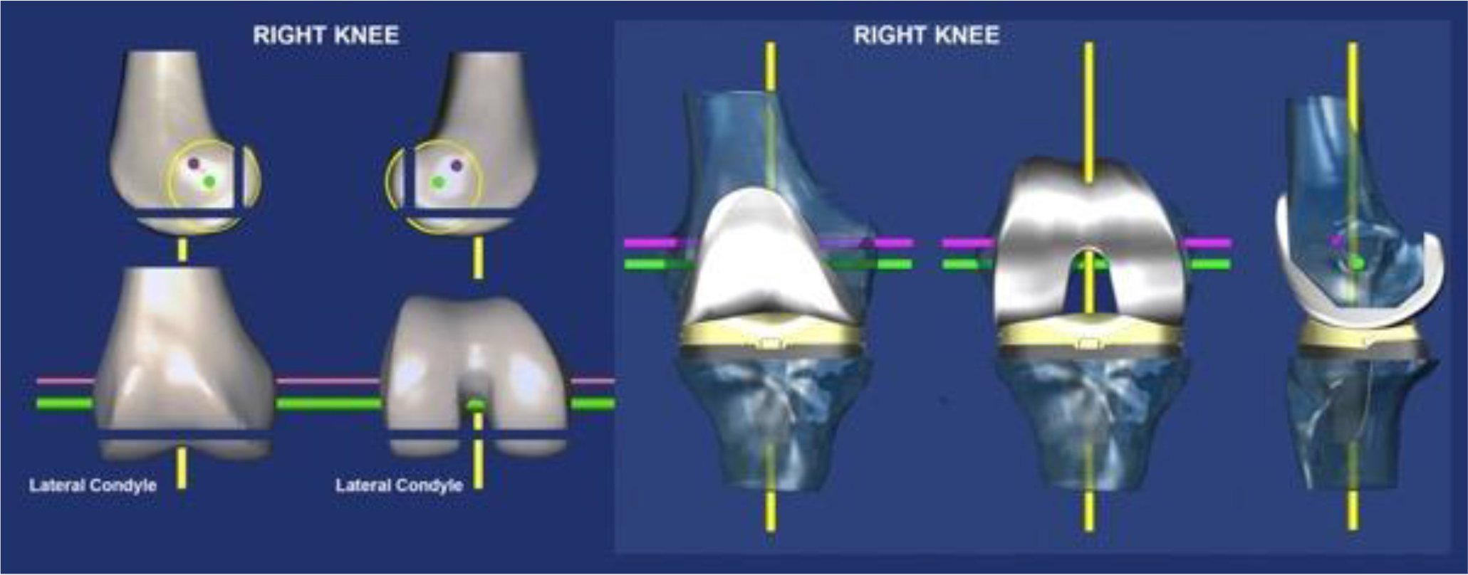 A right femur (left) and kinematically-aligned TKA (right) shows the parallel and perpendicular relationships between the three 'kinematic' axes of the knee, which from the anatomic basis for the philosophy of co-aligning the axes the components with those of the native knee s 42. The flexion-extension axis of the tibia is the green line, the flexion-extension axis of the patella is the magenta line, and the internal-external axis of the tibia is the yellow line. All three axes are closely parallel or perpendicular to the joint lines of the native knee. Resecting bone from the distal and posterior femur condyles equal in thickness to the condyles of the femoral component after compensating for 2 mm of cartilage wear and 1 mm kerf of the saw cut sets the femoral component coincident to the native joint lines and co-aligns the axes.