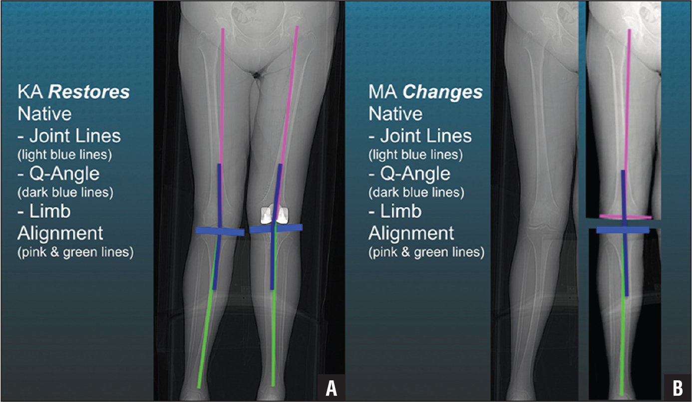 Composite of a patient with a constitutional valgus limb (A) showing that calipered kinematic alignment (KA) restored the native joint lines (light blue lines), Q-angle (dark blue lines), distal lateral femoral angle (pink lines), and proximal medial tibial angle (green lines) in the limb with the total knee arthroplasty without ligament release (B). Abbreviation: MA, mechanical alignment.
