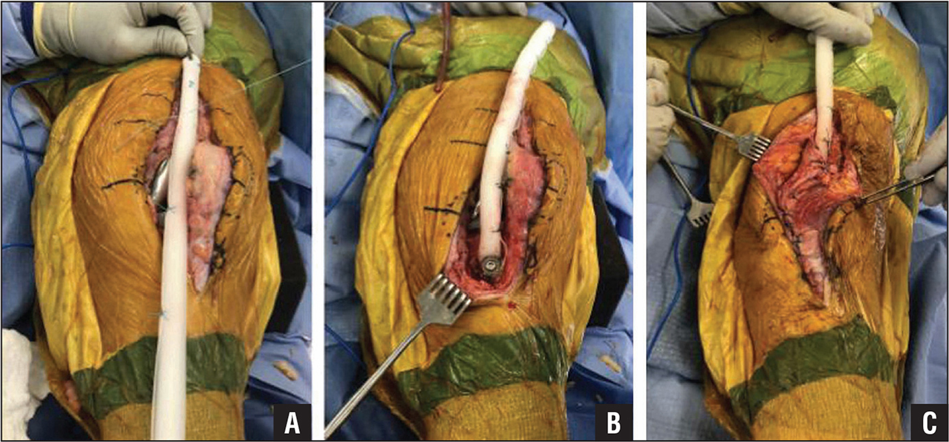 Extensor mechanism reconstruction using tubularized Marlex (C. R. Bard, Murray Hill, New Jersey) synthetic mesh. The mesh was prepared using interrupted nonabsorbable sutures (A). A trough was created in the anteromedial proximal tibia. The mesh graft was secured in the trough with cement and a transfixion screw and washer (B). The mesh was passed through a lateral soft tissue portal, allowing interposition between the mesh and components. The mesh was then secured proximally and the vastus medialis was mobilized to overlay the mesh in a pants-over-vest repair (C).