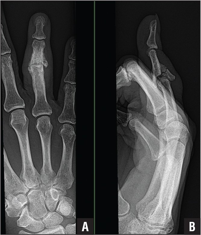Anteroposterior (A) and lateral (B) views of a proximal interphalangeal joint fracture dislocation. Five providers saw the patient on 5 different visits over 4 weeks prior to evaluation by a hand surgeon.