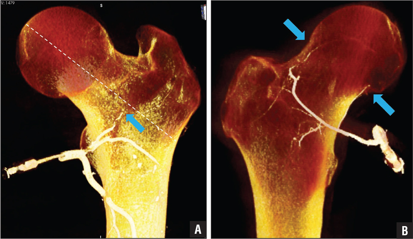 Subtraction 3-dimensionally reformatted computed tomography images of a cadaveric specimen following injection with barium sulfate and polyurethane. The anterior view (A) shows the lateral femoral circumflex artery terminal branch (blue arrow), while the posterior view (B) shows the medial femoral circumflex artery giving off its terminal branches, the superior retinacular artery (superior blue arrow) and inferior retinacular artery (inferior blue arrow).
