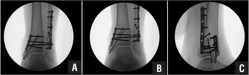 Case 2. Anteroposterior (A), mortise (B), and lateral (C) fluoroscopic views after syndesmotic screw placement showing concern for increased space in the superior joint (superior clear space) and asymmetry compared with the medial clear space, as well as anterior translation of the talus relative to the tibia.