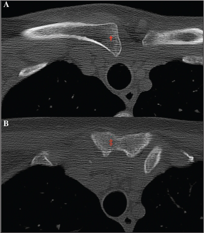 Axial computed tomography slices at the level superior to the sternoclavicular joint demonstrating the right medial clavicle (†; A) and at the level of the sternoclavicular joint demonstrating the manubrium of the sternum (‡; B). Compared with the left sternoclavicular joint (normal), the right clavicle is superiorly and medially dislocated relative to the sternum.