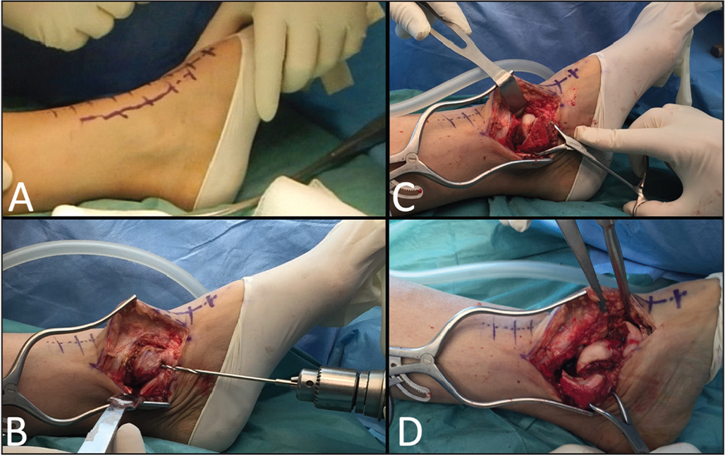 An anteromedial incision, 15 cm long, is performed to expose the ankle joint (A). The medial malleolus is predrilled with a 2.5-mm drill, and a transverse osteotomy at the level of the tibiotalar joint line is undertaken with a saw blade (B). The ligaments and capsules of the tibiotalar joint, the subtalar joint, the calcaneocuboid joint, and the talonavicular joint are divided (C). The talus is exposed, free of surrounding ligaments (D).