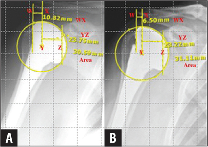 Measurement of medialization of the humeral prosthesis from initial postoperative (A) and latest (B) follow-up. A perfect circle was fitted to the humeral component. A line was drawn from the superior and inferior lips of the glenoid to create line Z. Vertical and horizontal grids were overlaid onto the image. A parallel line X was drawn from the center of the perfect circle (Y) to the clavicle. Another parallel line W was drawn from the lateral edge of the acromion. The difference in distance between lines W and X (WX) was used to measure medialization between the initial postoperative and final postoperative radiographs. To limit bias of magnification and rotation, radiographs were incorporated into the analysis only if the arm was in neutral rotation, there was equal extension of the scapular neck, and the area of the perfect circle was equivalent.