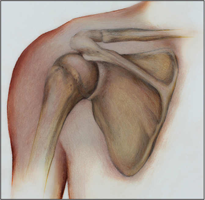 Lateral decubitus position of the shoulder. (Copyright Julie Ranels. Used with permission.)