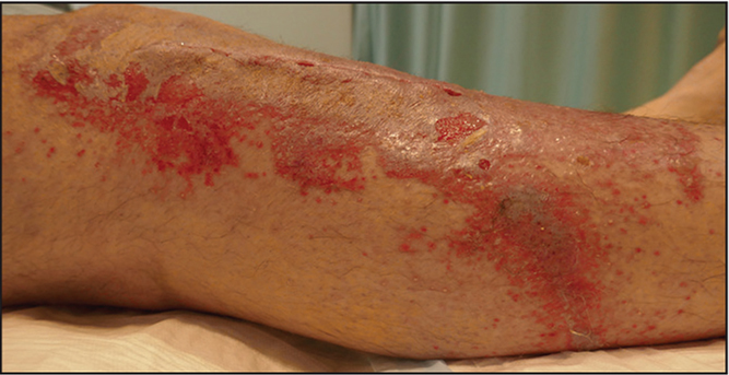 Clinical photograph of patient 3 on day 7 showing a rash below the site of glue application (consistent with dripping of the Dermabond Prineo glue [Ethicon, Somerville, New Jersey]) as well as scattered perifollicular pustules and erosions.