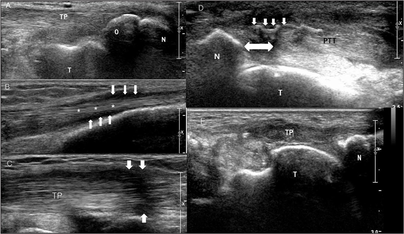 Ultrasonographic findings of the posterior tibial tendon. Intact echogenic fibrous tissue of the posterior tibial tendon near the navicular insertion and accessory navicular is seen (N, navicular bone; O, accessory navicular; T, talus; TP, posterior tibial tendon) (A). Intact echogenic fibrous tissue of the posterior tibial tendon (asterisks) is seen, with surrounding low echogenic fluid collection (arrows), consistent with tenosynovitis (B). Diffuse thickening of tendon fibers and focal decreased echogenicity of the posterior tibial tendon (arrows) is seen, consistent with tendinopathy (TP, posterior tibial tendon) (C). A torn and retracted posterior tibial tendon from the navicular insertion is seen. The wavy pattern of fibrous tissue (arrows) may be caused by loss of normal tension of the tendinous fibers (N, navicular bone; PTT, posterior tibial tendon; T, talar head). The double arrow represents the amount of tendon retraction (D). Absence of a posterior tibial tendon shadow (TP) is noted just proximal to the navicular insertion, which is normally a high-echogenic shadow. The distal end of the torn and retracted posterior tibial tendon was located at the retromalleolar groove (N, navicular bone; T, talar head) (E).