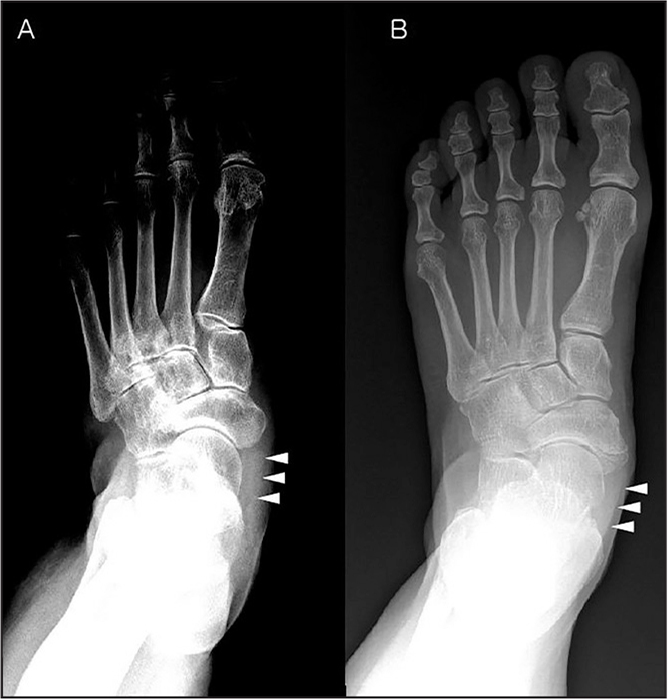 Resolution of the posterior tibial tendon shadow can be variable, depending on the condition of the surrounding soft tissue. The tendon shadow (arrowheads) on foot radiographs can be poorly delineated (A) or well delineated (B) for the intact posterior tibial tendon.
