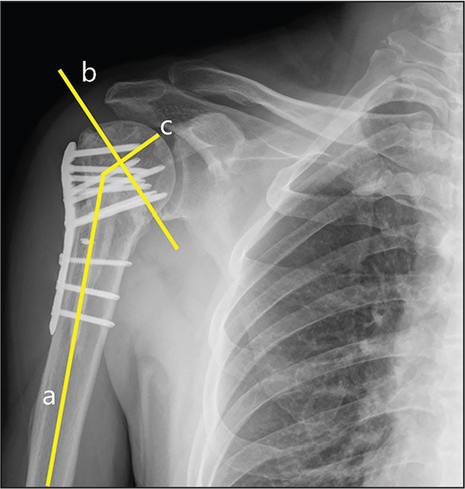 Anteroposterior radiograph of the shoulder at 12 months postoperatively showing the neck-shaft angle defined by the angle sub-tended by the centerline of the shaft and a perpendicular line from the superior to the inferior border of the articular surface. Line a refers to the axial line of the humeral shaft. Line b refers to the line between the superior and inferior borders of the articular surface of the humeral head. Line c is perpendicular to line b and goes through the center of the humeral head.