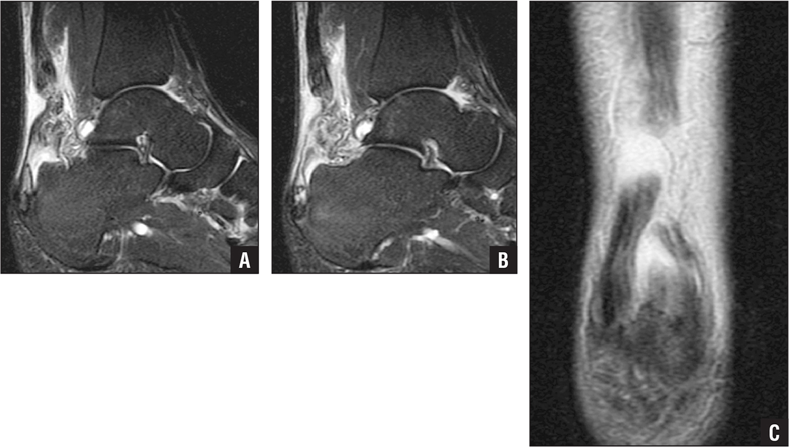 Sagittal magnetic resonance imaging cut at the midportion of the Achilles tendon showing a complex longitudinal oblique tear that originated distally, avulsed a piece of posterior bone, and propagated proximally into a complete tear. There are multiple areas of midsubstance and insertional Achilles disruption with surrounding edema (A). Sequential sagittal magnetic resonance imaging cut just lateral to midline showing lack of tendon continuity to the Achilles insertion (B). Coronal magnetic resonance imaging cut showing a complex Achilles rupture with combined midsubstance and insertional components (C).