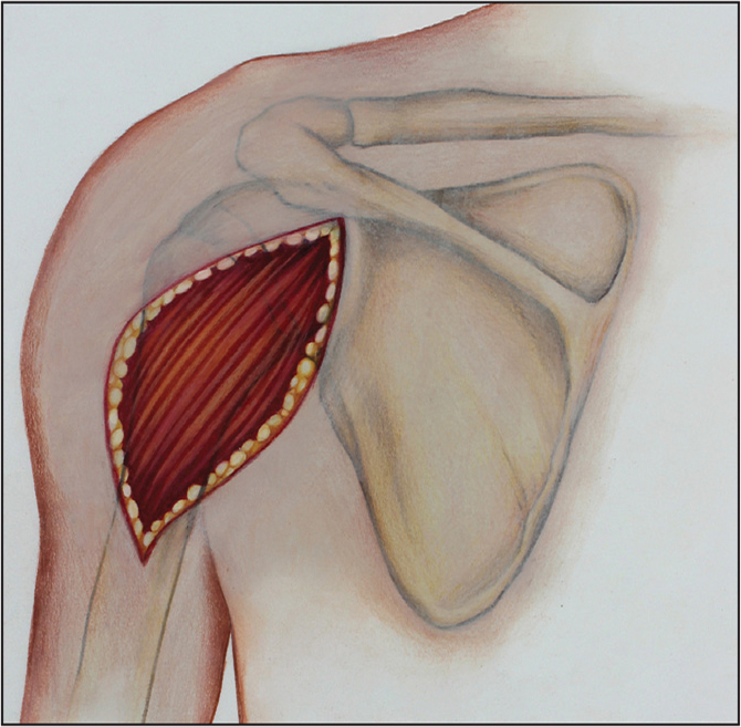 Deltoid access incision. (Copyright Julie Ranels. Used with permission.)
