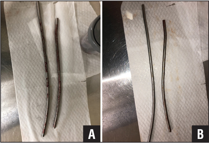 Rods immediately after explantation (A). The longer rod has been wiped down to expose surface defects (B). These rods were removed from a patient undergoing revision due to sagittal balance imbalance.