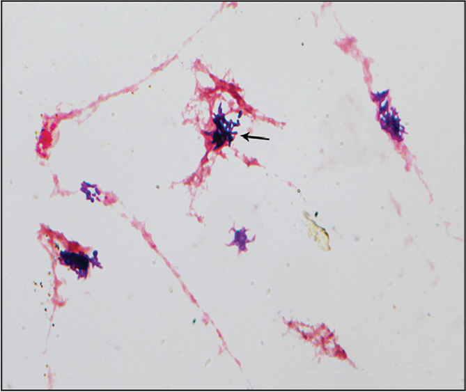 Composite Gram stain showing Cutibacterium acnes in various presentations of pleomorphic, non–spore-forming, gram-positive bacilli. The arrow indicates the most characteristic morphology (original magnification, ×100).