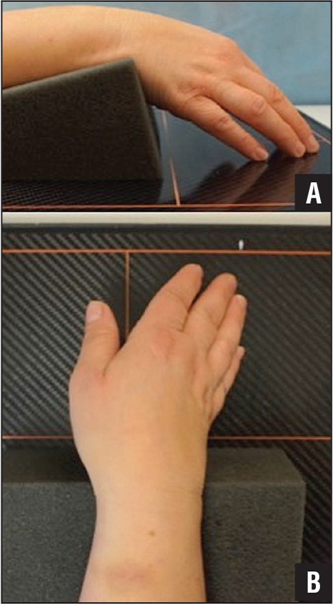 Position of the hand for the described view. The hand is draped over the inclined edge (A) and ulnarly deviated (B).