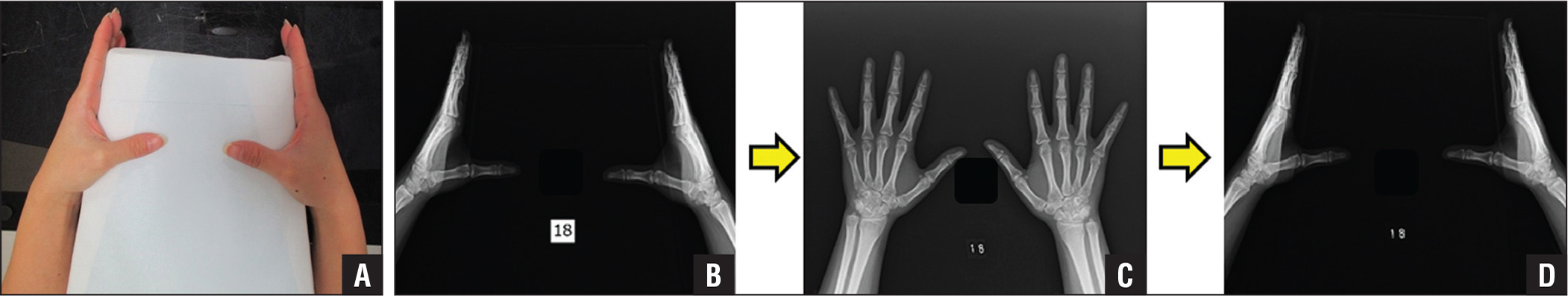 Photograph showing the position of the box and the subject's thumbs (A). Lateral radiograph of the bilateral wrists and hands showing the hand position during the first measurement (B). Anteroposterior radiograph of the bilateral hands showing the transition position (C). Lateral radiograph showing the position during the second measurement (D).