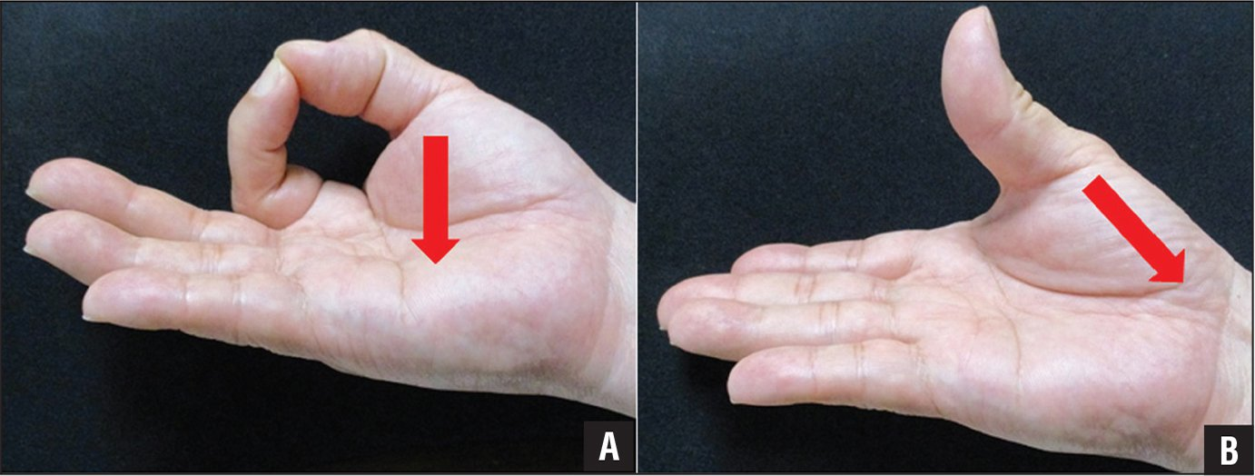Photographs showing the distinction between tip pinch (A) and thumb palmar abduction (B) in terms of the direction of the thumb. The red arrow indicates the direction of the contracture of the thenar muscles.