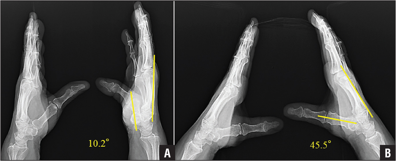 Lateral preoperative (A) and postoperative (B) radiographs of the bilateral wrists and hands of a 63-year-old woman showing severe carpal tunnel syndrome in the right hand evaluated by the radiographic method. The recovery of palmar abduction of the right thumb was observed convincingly.