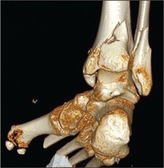 Preoperative computed tomography scan with 3-dimensional reconstruction showing a large posterior malleolus fracture along with medial and lateral malleolus fractures.