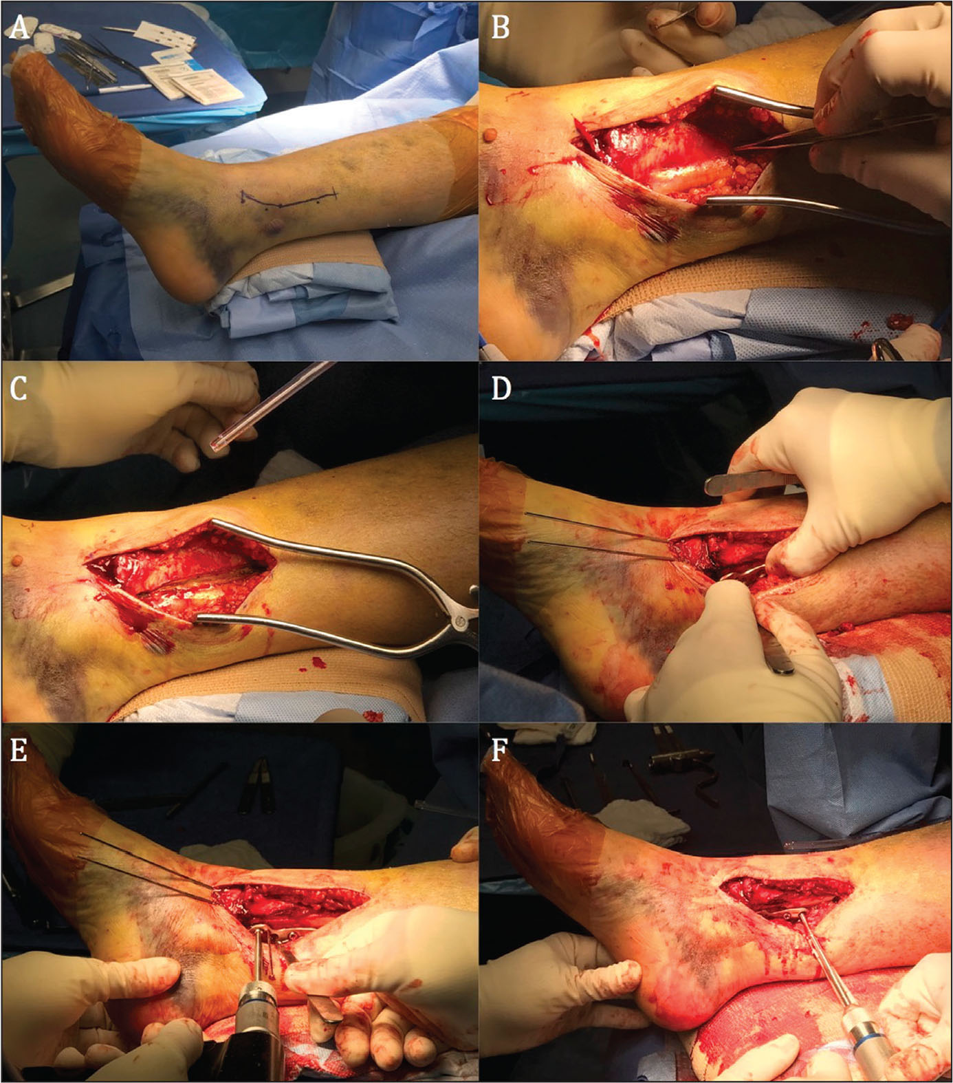 Intraoperative photographs of open reduction and internal fixation of a posterior malleolus fracture via a posteromedial approach. The patient is supine on the operating room table. A posteromedial incision is made 6 cm above the ankle joint and curves around the posterior aspect of the medial malleolus (A). Dissection is carried down to the interval between the saphenous vein and the tibialis posterior tendon (B). The tendon is released and retracted posteriorly. A plate is then selected and applied on the posteromedial surface of the tibia (C, D). Under direct visualization of the fracture, posterior to anterior screws are implanted through the plate (E, F).