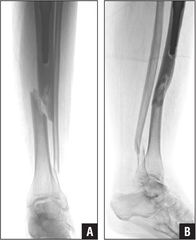 Anteroposterior (A) and lateral (B) radiographs of a 66-year-old woman with a previous total knee arthroplasty who presented after a fall and had sustained a Felix type IIIA fracture. The implant-stable Felix type IIIA fracture can be seen.