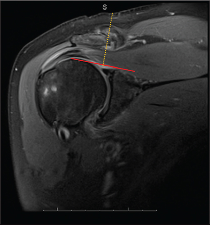 Measurement of the Neviaser portal on a T2 coronal magnetic resonance image from the skin to the superior triangle.