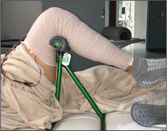 Postoperative recovery using gravity-assisted passive flexion (GAP-FLEX) in the hospital setting.