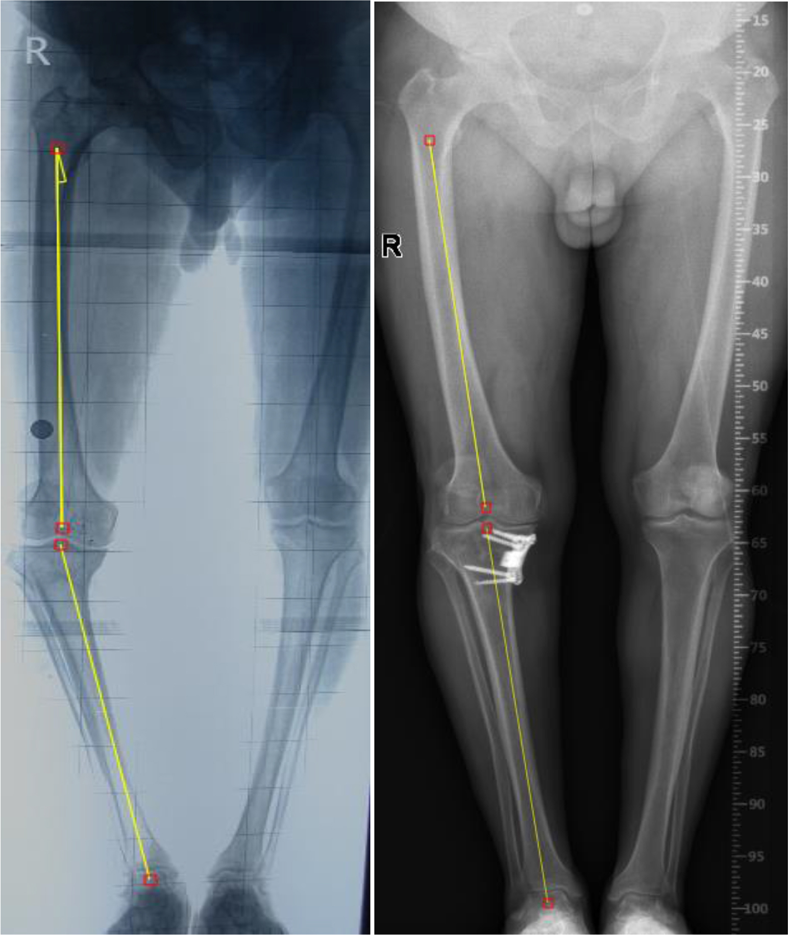 Orthoroentgenographs of a patient before (Left) and ten years after MOWHTO (Right) demonstrating under-correction. (Preoperative LTFA: 196°, postoperative LTFA: 180°)