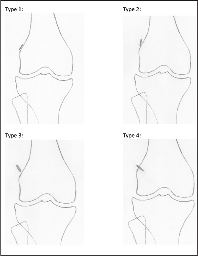 Doss and Ruotolo grading scale for femoral cortical button placement.