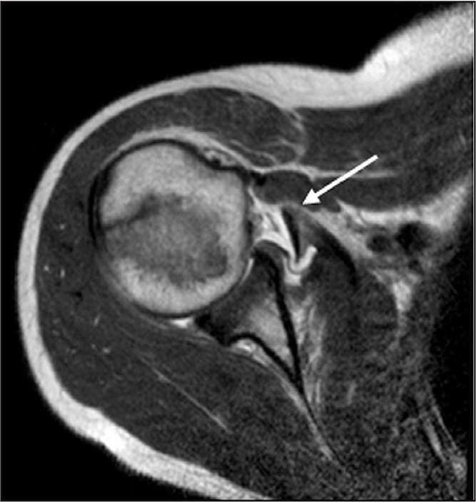 Magnetic resonance image at initial presentation showing a full-thickness subscapularis tendon tear (arrow).
