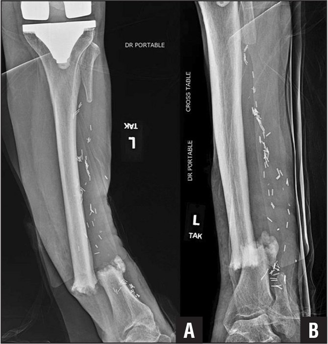 Anteroposterior (A) and oblique (B) radiographs of the left tibia showing an impending open displaced transverse fracture of the distal third tibia with significant sclerosis.