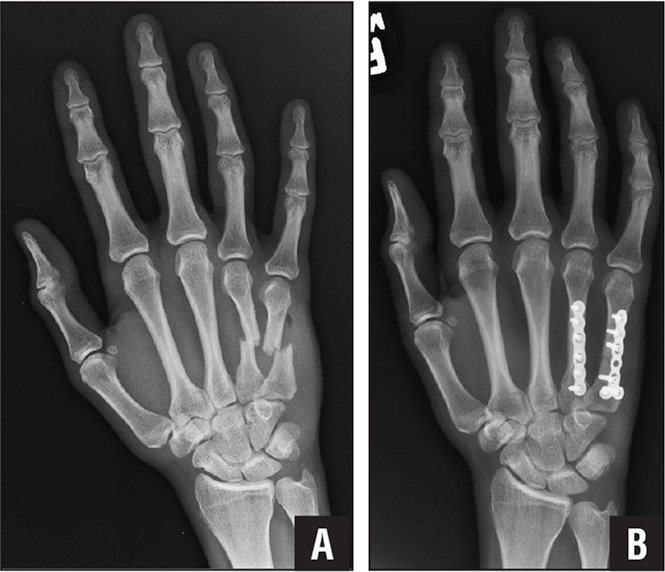 Preoperative (A) and 2-week postoperative (B) anteroposterior radiographs of fourth and fifth metacarpal fractures treated with open reduction and internal fixation using low-profile anatomic plates.