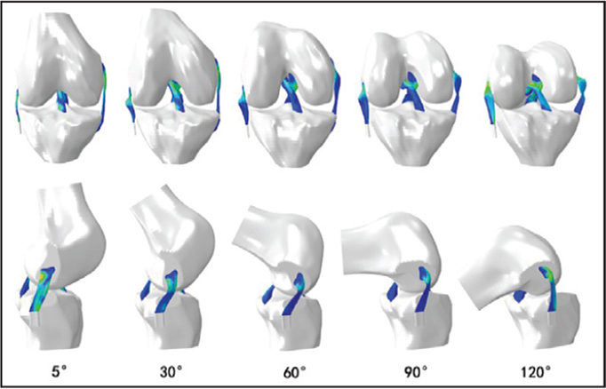 Anterior (top) and lateral (bottom) views of models at several specific flexion angles.