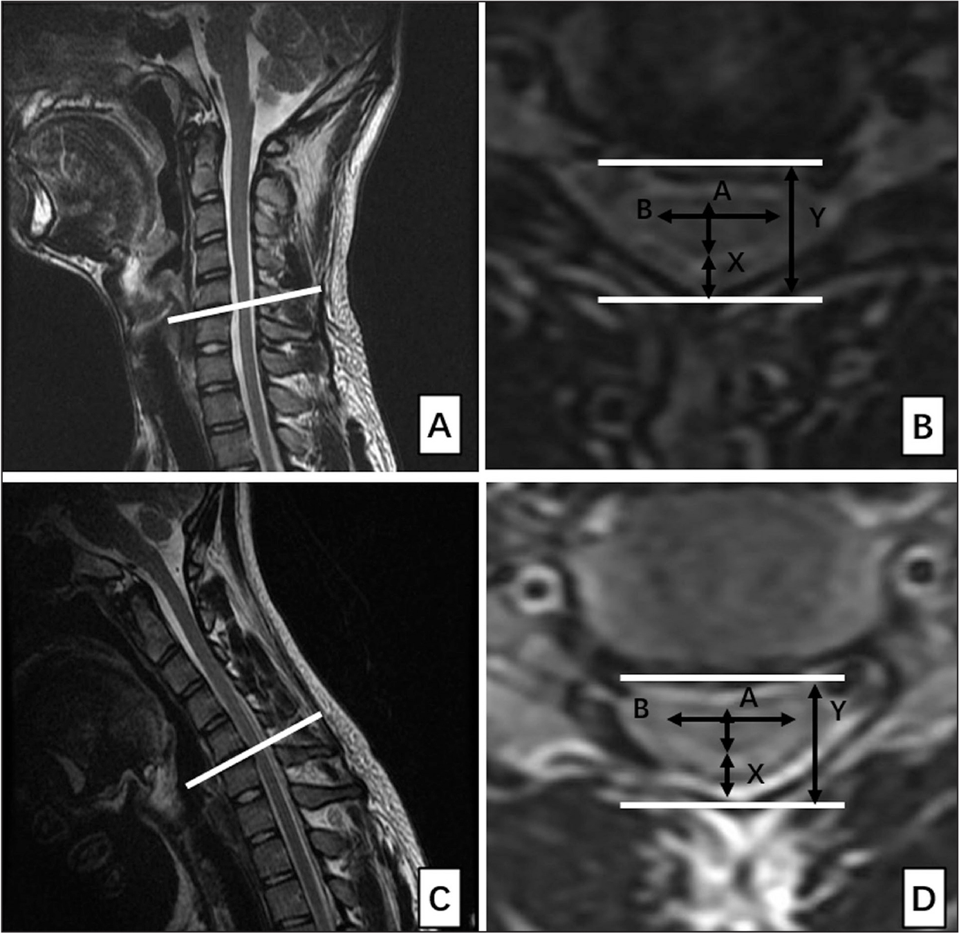 On cross-sectional magnetic resonance imaging, measurement of the cervical spine in neutral position (A, B) and flexion position (C, D) in patients with Hirayama disease. A, the anteroposterior diameter of the cervical cord; B, the transverse diameter of the cervical cord; X, the distance between the posterior edge of the spinal cord and the posterior wall of the spinal canal; Y, the anteroposterior diameter of the spinal canal.