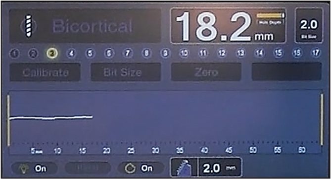 The real-time depth measurements are displayed on the controller's digital screen. In this example, the depth is 18.2 mm.