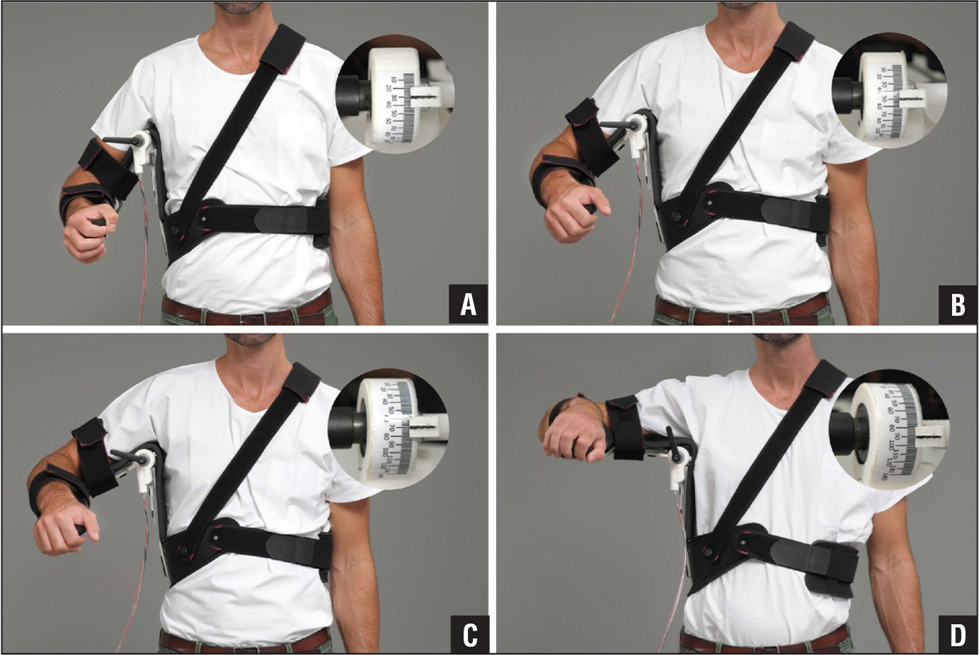 Arm position in different abduction angles in the shoulder abduction brace: 30° (A), 50° (B), 70° (C), and 90° (D).