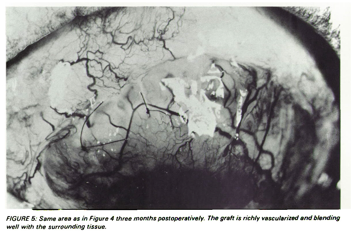 FIGURE 5: Same area as in Figure 4 three months postoperatively. The graft is richly vascularized and blending well with the surrounding tissue.