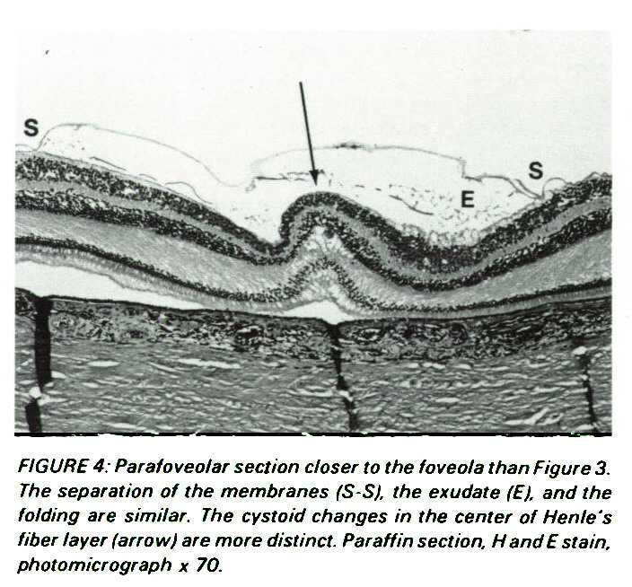 FIGURE 4: Parafoveolar section closer to the foveola than Figure 3. The separation of the membranes (S-S), the exúdate (E), and the folding are similar. The cystoid changes in the center of Henle's fiber layer (arrow) are more distinct. Paraffin section, H and E stain, photomicrograph ? 70.